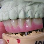 Hybrid with E-Dent Denture set up