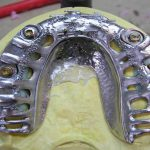 Esthetic OverDenture with Secondary Mesh Frame
