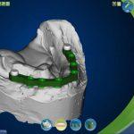 CAD/CAM Titanium Bar and Attachment Designs