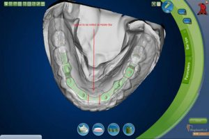 Implant Model and Denture scanned and digitized