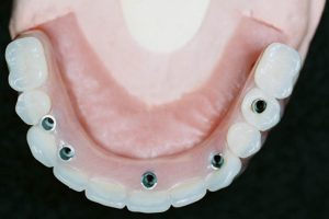 Screw Retained Hybrid Denture