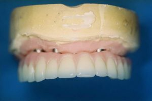 Screw Retained Hybrid Denture with Phonara Denture Teeth