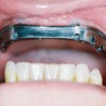 Max Titanium Implant Bar with shoulders to accept Screw Retained OverDenture