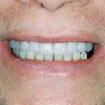Successful Placement of Max Hybrid OverDenture