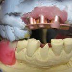 Pink CAD/CAM Titanium Bar to Assist in Retaining Denture Color